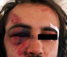Αντιφασίστες Χτυπημένοι